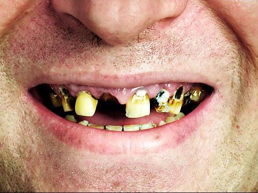 Выбитые зубы это вред здоровью наших
