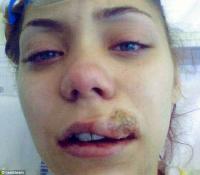 Британский стоматолог прожег девушке губу