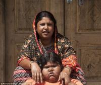 Самая толстая девочка Индии