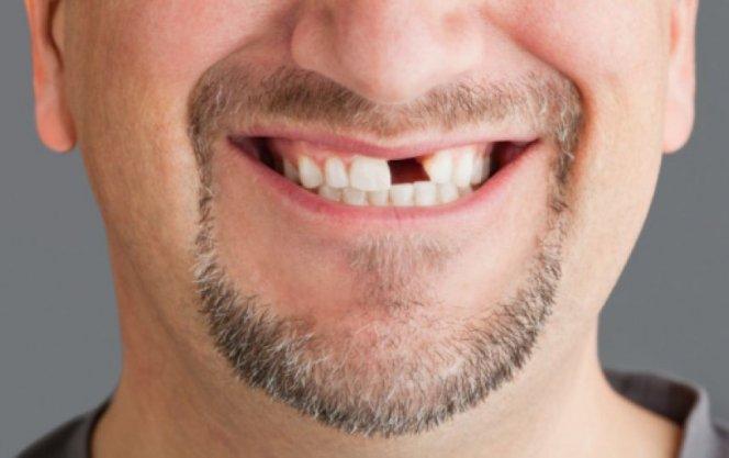 К чему снится если нет передних зубов
