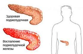 Питание при гастрите и панкреатите