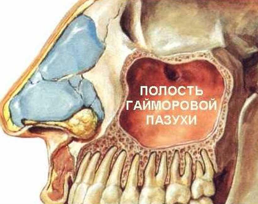 Гайморова пазуха
