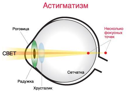 Лечение астигматизма по методу бейтса