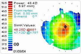 Топографическая карта роговицы показывает все неровности глаза. Она помогает врачам-офтальмологам выбрать правильную линзу, чтобы исправить зрение