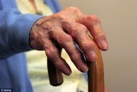 Какие первые симптомы у остеоартрита?