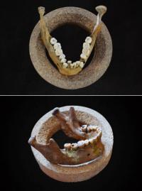 Неправильный прикус возник 12 тысяч лет назад