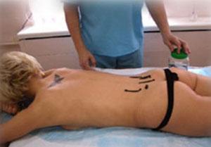 Лечение геморроя пиявками