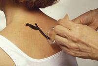 Лечение пиявками хронического гепатита и цирроза печени