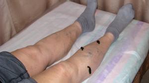 Гирудотерапия тромбофлебита