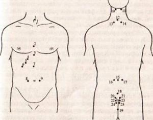 Лечение аллергии пиявками