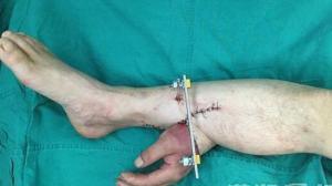 Для спасения руки, врачи пришили ее на месяц к ноге пострадавшего
