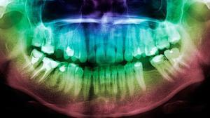 Еще один побочный эффект диабета: потеря зубов