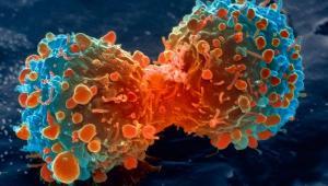 В 9 из 10 случаев причина рака – неправильный образ жизни