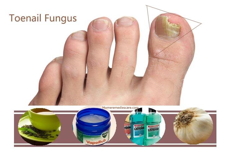 Средства для профилактики грибка ногтей отзывы