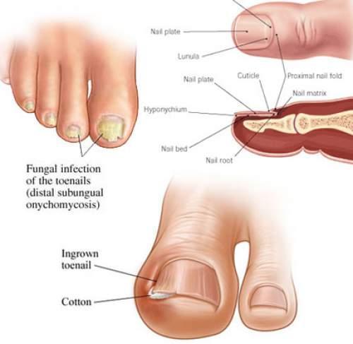 Ногтевой грибок на ногах лечение, препараты ; онихомикоз