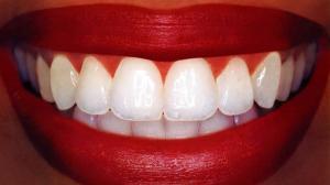 Отбеливание зубов: Как не причинить вред?