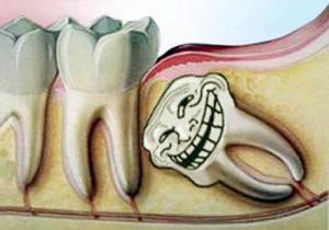 Проблемы, возникающие при появлении зуба мудрости