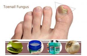 Как избавиться навсегда от ногтевого грибка?