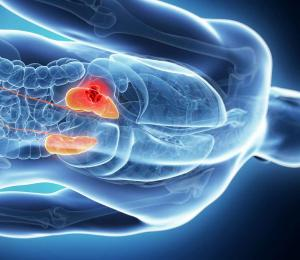 Лечение острой почечной недостаточности при отравлениях