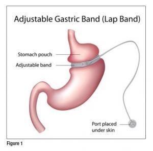 Желудочный и кишечный диализ