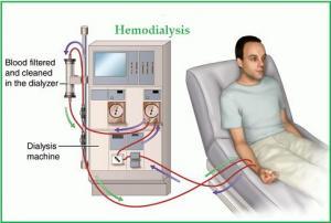 Гемодиализ при отравлениях