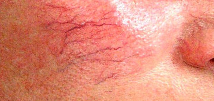 Причины пульсирующей боли в большом пальце на ноге