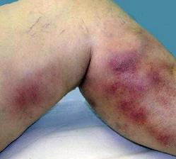 Лечение венозной патологии