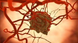 Как клетки рака груди переходят в метастазу