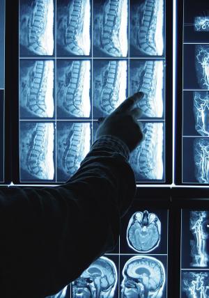 3 простых способа укрепить кости