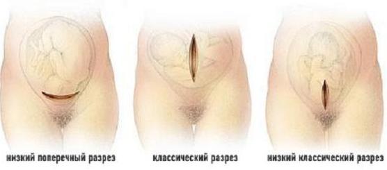 Типы разрезов матки при кесаревом сечении