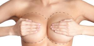 Пластика груди - Маммопластика
