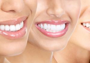 Общие сведения о таких услугах, как протезирование, имплантация и отбеливание зубов