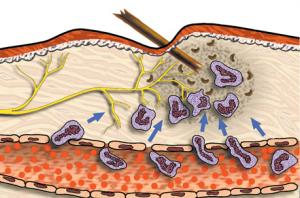 Локализация асептически протекающих воспалительных процессов