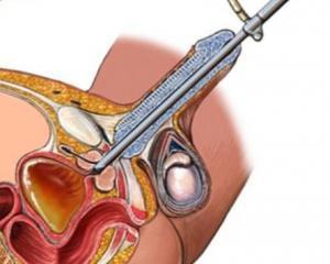 Питание больных, страдающих хроническим простатитом