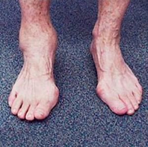 Туберкулез голеностопа