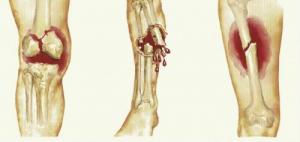 Стойкие последствия переломов костей конечностей