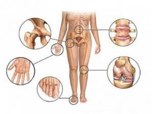 Воспалительные артриты и не воспалительные артрозы