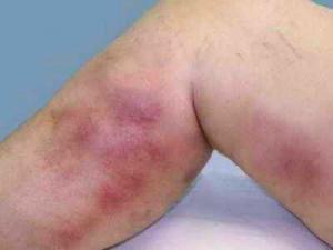 Классификация тромбофлебитов