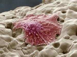 Сложные процессы одновременного разрушения и восстановления костной ткани