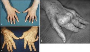 Различные виды поражений суставов