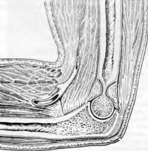 Туберкулез локтевого сустава