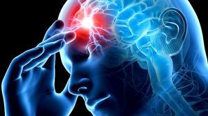 Как распознать инсульт, пока еще не слишком поздно