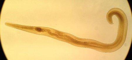яйца кишечных паразитов у человека