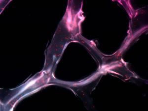 Что такое реперфузионный синдром? В чем его сущность? Каковы механизмы его развития?