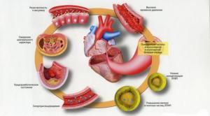 Какие Выделяют гемодинамические варианты артериальной гипертензии?