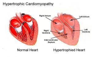 Какие особенности гипертрофированного сердца являются предпосылкой развития его декомпенсации?