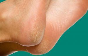 Шелушится и трескается кожа на ступнях? Мы расскажем о семи причинах