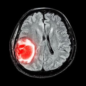 6 фактов об опухолях мозга, которые вы должны знать