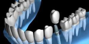 Китайский робот выполнил первую в мире автоимплантацию зубов