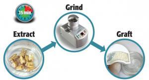 Переработкаизвлеченных зубов пациентов в костный трансплантат дает выдающиеся результаты